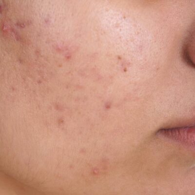 Acne Treatment The Common Sense Approach
