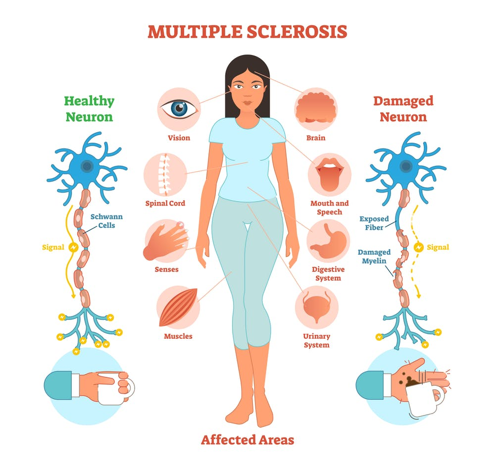 Coping Techniques For People Suffering From Multiple Sclerosis